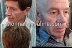 3-pelucas-para-alopecia-2