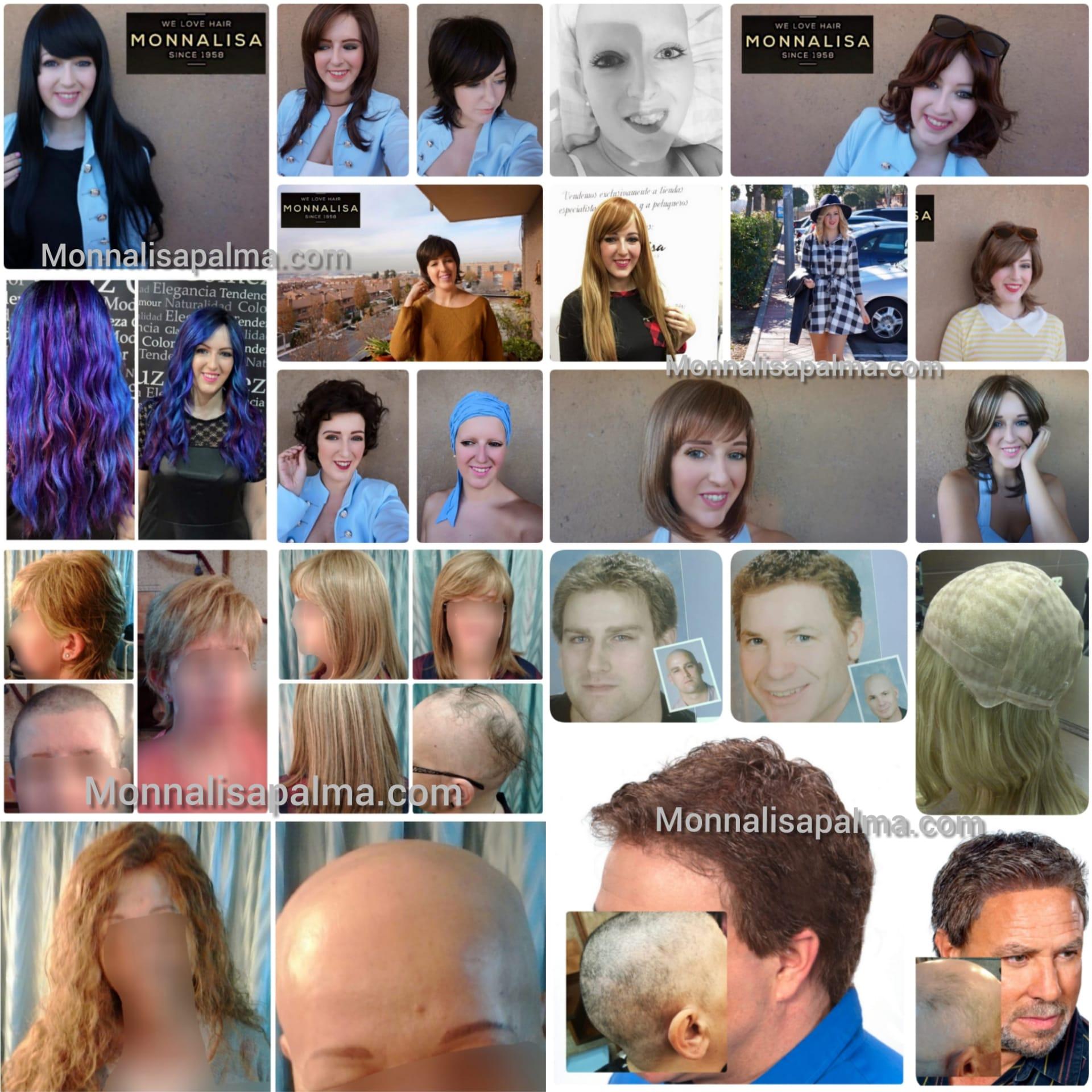 foto-alopecia-monna-lisa-palma-1