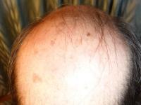 pelucas-dermafix-22