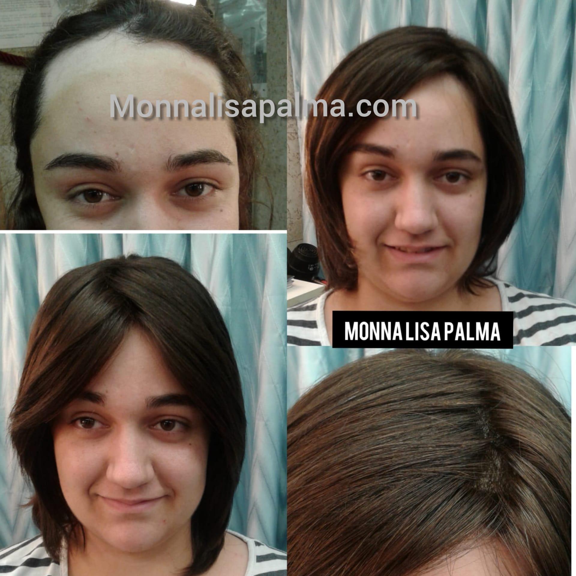pelucas para alpecia